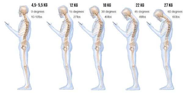 Il peso dello smartphone sulla nostra colonna vertebrale.